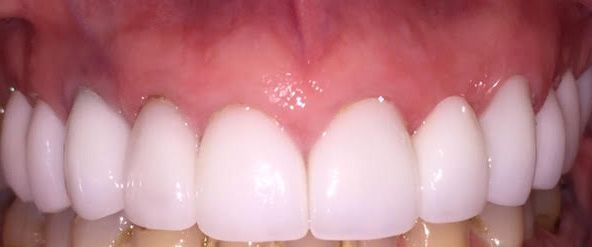 After IPS e.max® crowns.