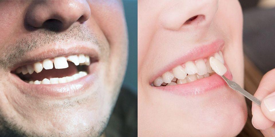 Dental bonding vs. porcelain veneers.