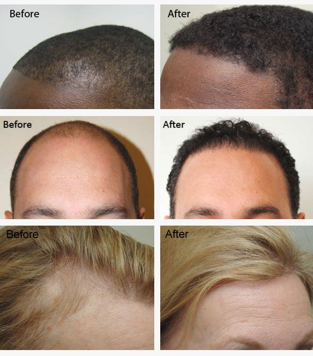 Neograft hair restoration patients