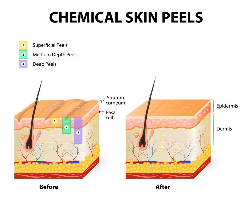 Illustration comparing chemical peels