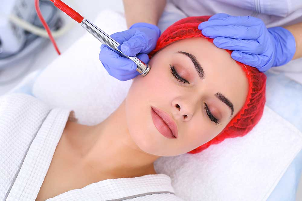 A microdermabrasion procedure