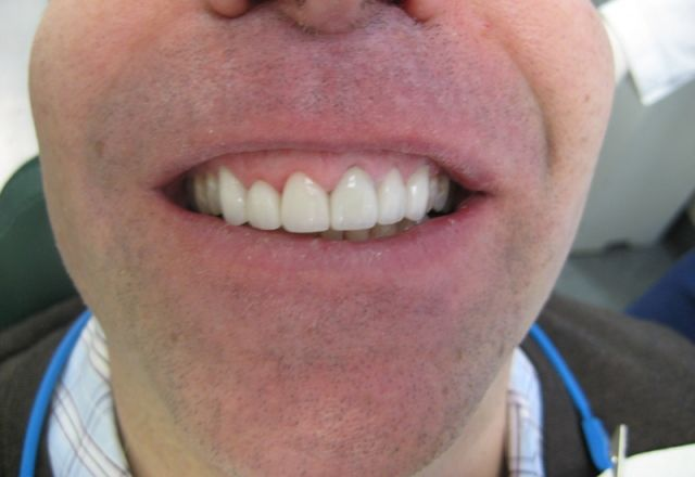 image of before/after porcelain veneers treatment