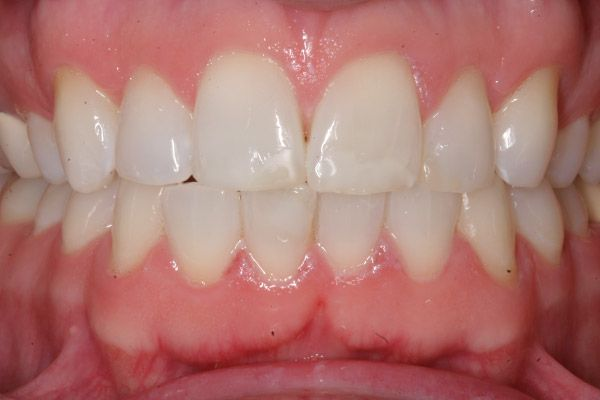 image of before dental crown