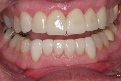 image of teeth with dental crowns