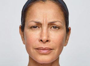 Woman frowning before Dysport injections