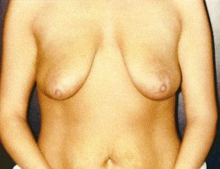 before and after image of breast augmentation