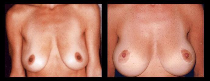 A woman's breasts before and after the breast lift and augmentation