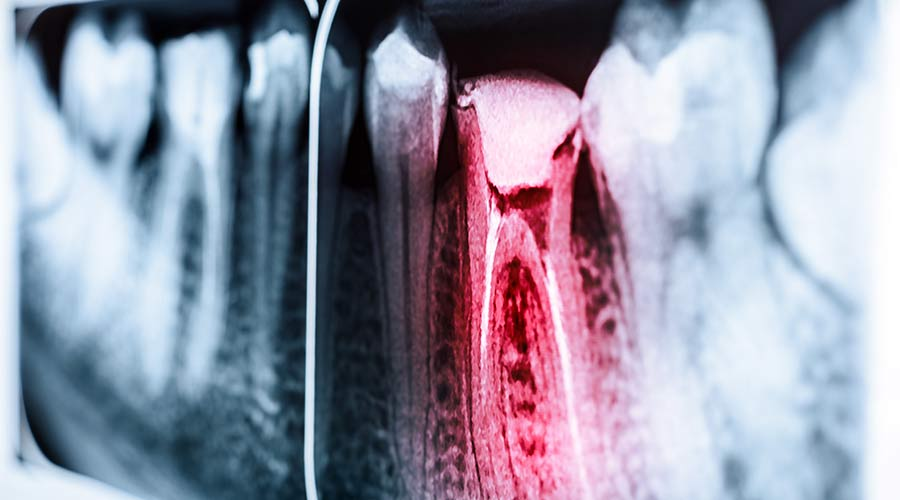 An x-ray image of a tooth highlighted in red
