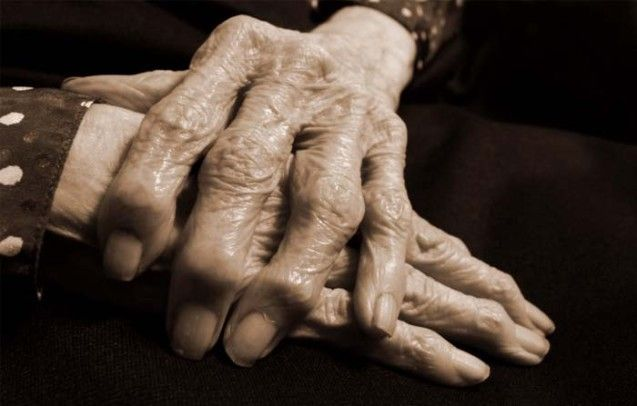 Photo of hands with arthritis