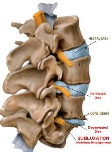Subluxation illustration