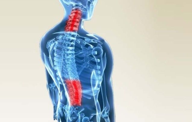 3-D graphic highlighting the spine