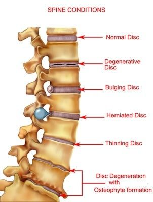 Degenerative Disc Disease illustration