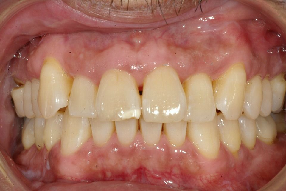image of before Invisalign