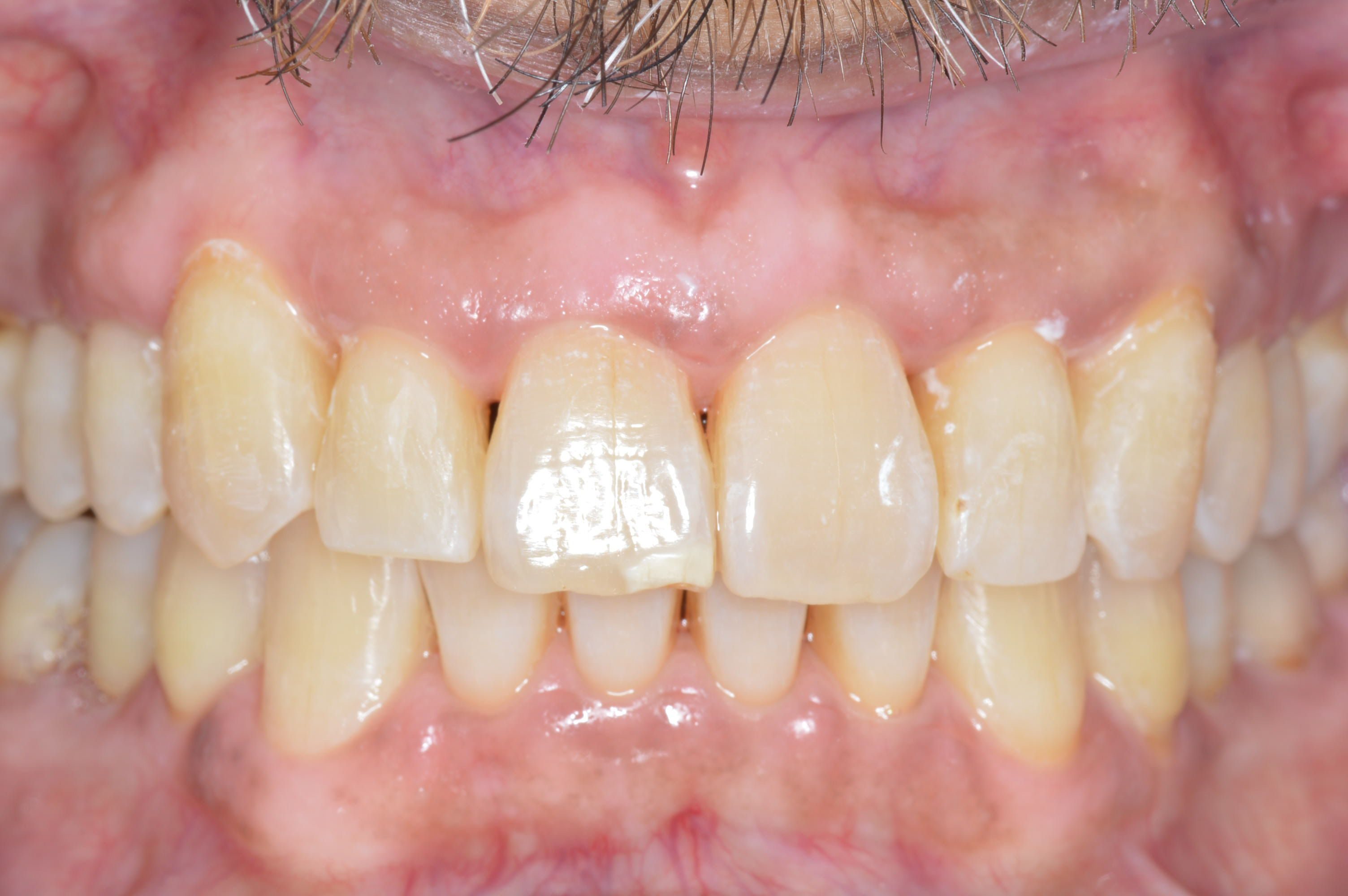 image of after Invisalign