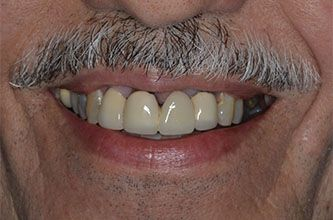 image of before implant-supported dentures