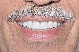 image of after implant-supported dentures