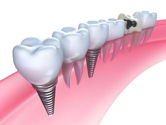 Dental implants illustration.