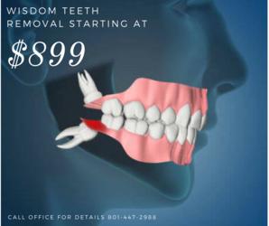 Wisdom Teeth Removal Coupon