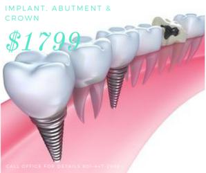 Dental impant, crown coupon