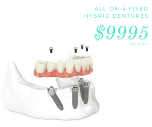 all-on-4 permanent denture coupon