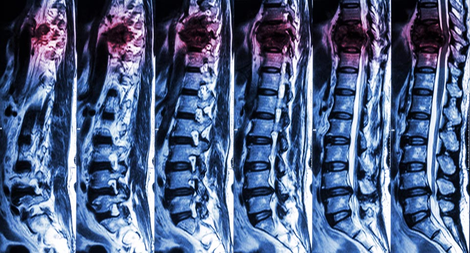 Imaging scans of spinal cord