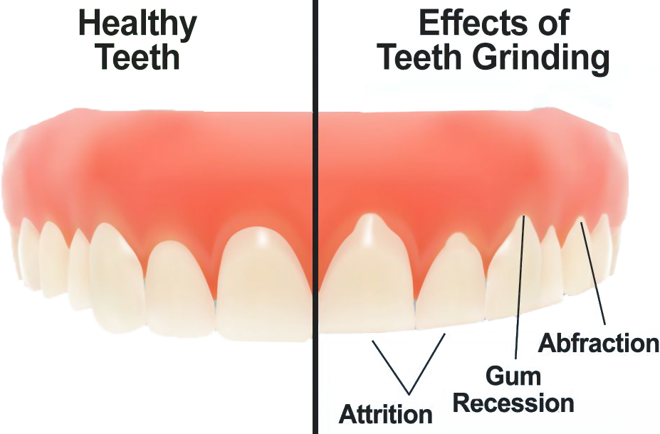 Comparison of teeth unaffected by grinding and those affected by grinding