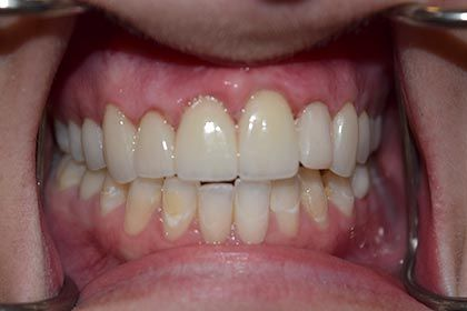After cosmetic dentistry photo