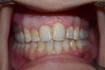 Before cosmetic dentistry photo