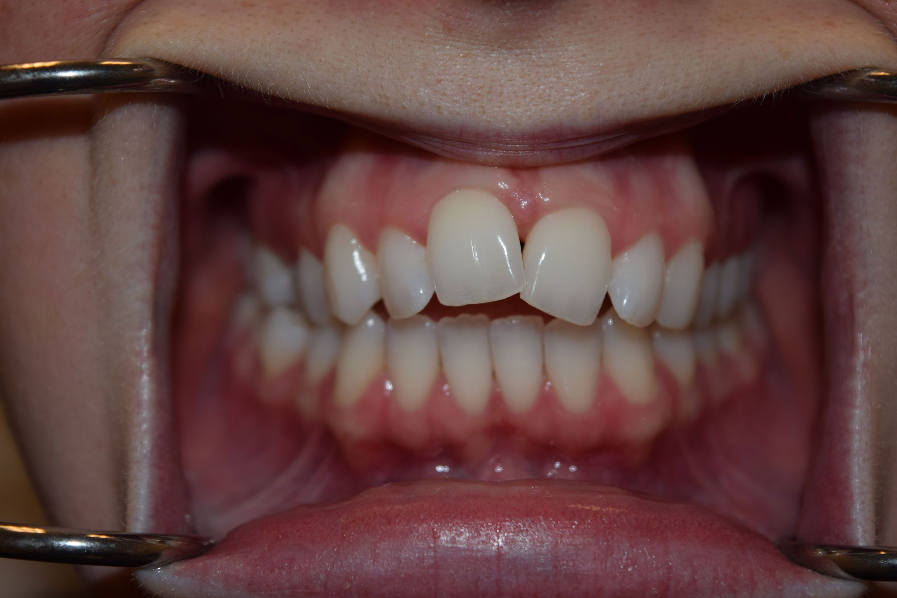 Before Invisalign: A smile with crooked front teeth
