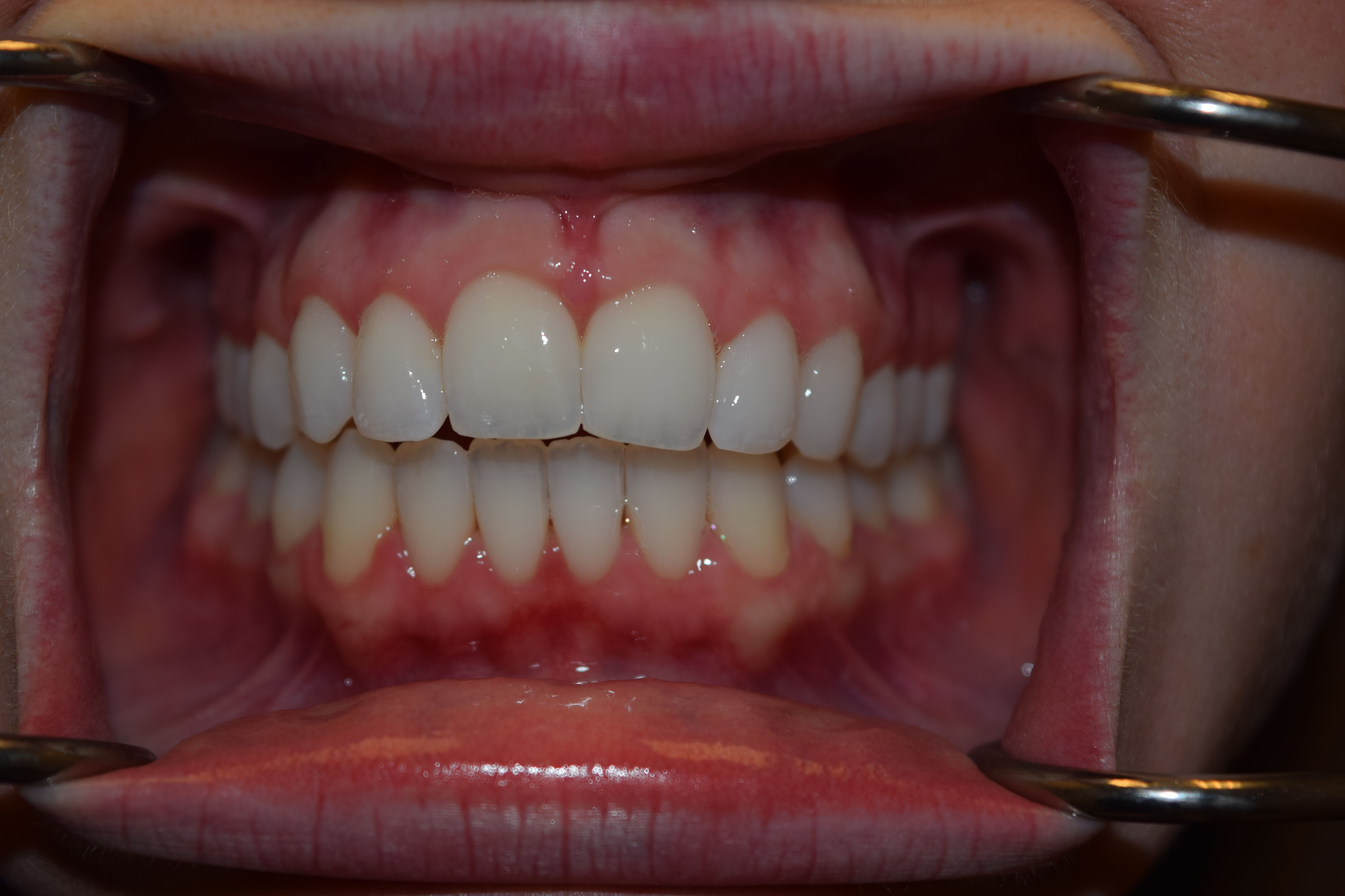 After Invisalign: A straightened smile