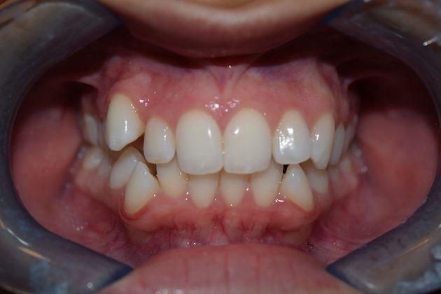 Teeth before Invisalign treatment