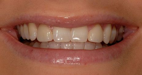 Smile before porcelain veneer treatment