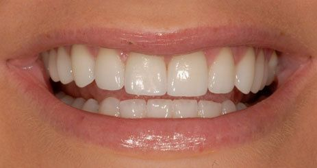 Smile after porcelain veneer treatment