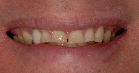 Before photo of smile