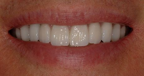 Smile after receiving porcelain crowns