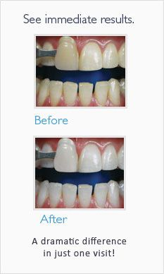 Teeth Whitening Plano Tx Imagecare Dental Zoom Whitening