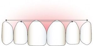 Correct Gum Symmetry Illustration