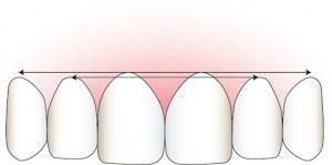 Correct Gum Symmetry Illustration