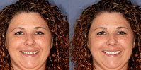 Imagecare Dental Patient Smile Design Before and After