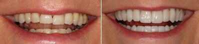 Before and After Wax Up for Smile Design