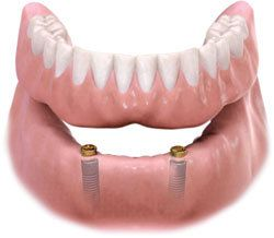 Dental Implant to Support Dentures