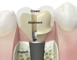 Crown, Abutment and Implant