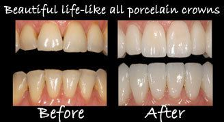 Porcelain Crowns before and after