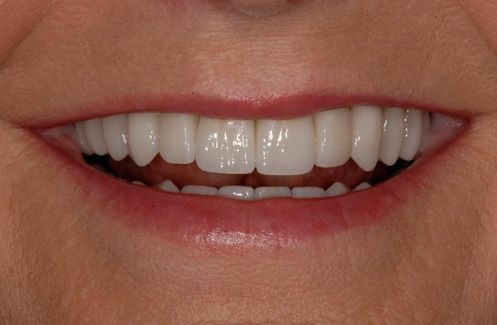 Smile After Full Mouth Reconstruction