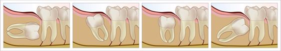 Plano Wisdom Teeth Illustration