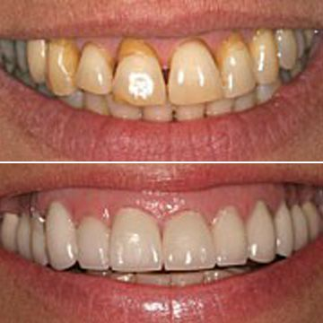 Before and after a smile makeover
