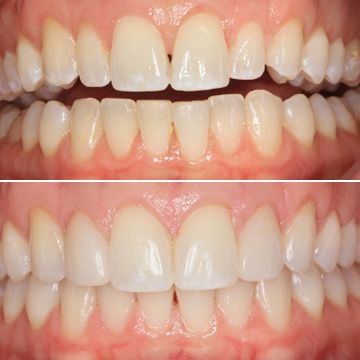 Before and after images of Invisalign® patient.