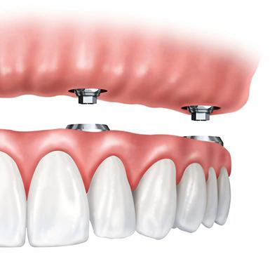 Close-up of dentures.
