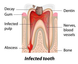 image of infected tooth