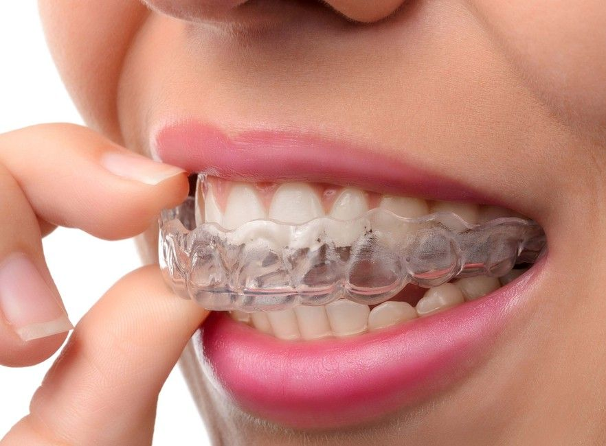 ClearCorrect orthodontic treatment